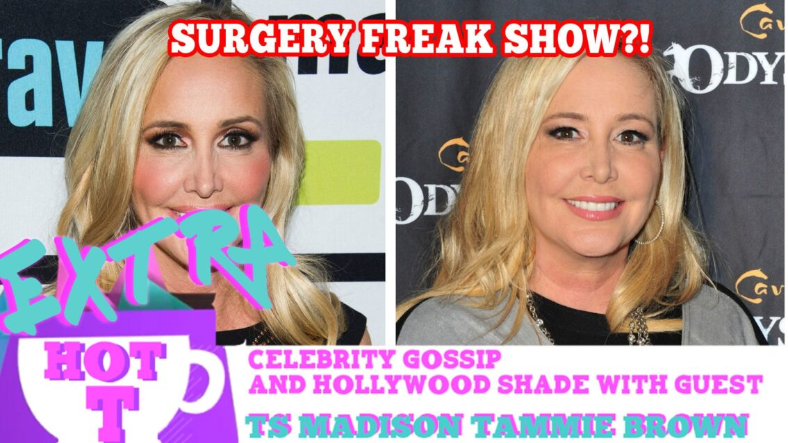 Real Housewife Plastic Surgery Freak Show?: Extra Hot T with TAMMIE BROWN & TS MADISON